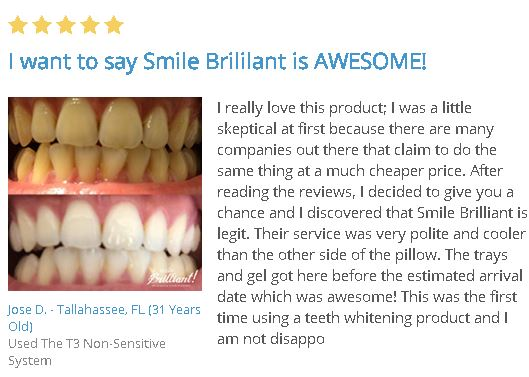 smile brilliant reviews