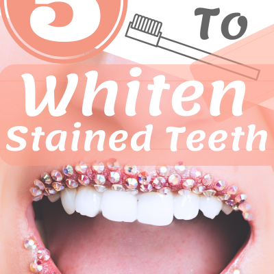 5 Popular Ways to Whiten Stained Teeth