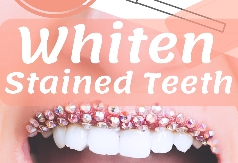 ways to whiten stained teeth